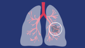 graphic illustration of lung